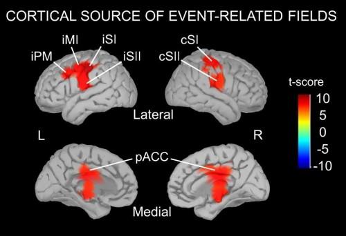 표준연 연구팀이 뇌자도 장치로 측정한 온도 감각 인지에 따른 뇌 전기신호. cSⅠ이 일차 체성감각 영역, cSⅡ가 이차 체성감각 영역을 나타낸다. - 한국표준과학연구원 제공